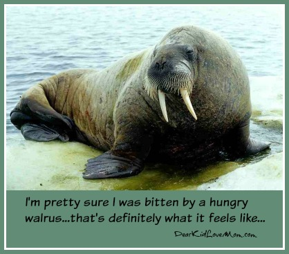 I'm pretty sure I was bitten by a hungry walrus. There must be an outbreak of them in our office....DearKidLoveMom.com