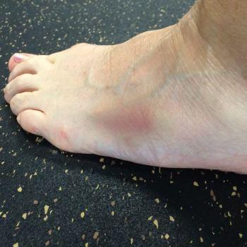 BruisedFoot