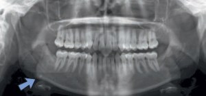 FIGURE 9. A sialolith presents as a small, round-like radiopacity uperimposed on the right mandibular inferior border.