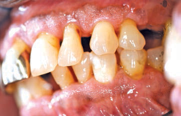 FIGURE 2. Gingival recession and loss of periodontal attachment in an older adult.