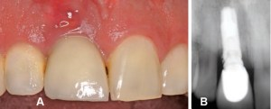 FIGURE 3A and FIGURE 3B. These images show the periodontal status of a patient with peri-implant mucositis after undergoing nonsurgical therapy for four weeks. Note the debris (cement) on the mesial of the implant. If cement is still present and/or inflammation has not resolved with nonsurgical treatment, surgical intervention may be necessary.