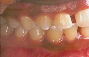 FIGURE 3. The right quadrants of the patient from Figure 2 before undergoing periodontal treatment.