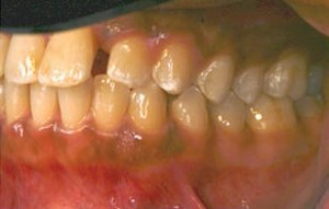 FIGURE 4. The upper right quadrant of the same patient two years after active treatment. The diastema between #9 and #10 is still present, but appears reduced in width.
