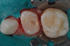 FIGURE 4. Following preparation of the occlusal surface, clinicians must take crown thickness into account when creating interproximal separation. This generally requires reductions of 1 mm or more so an explorer can pass through the proximal space.
