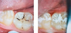 FIGURE 2. This series depicts the placement of glass ionomer cement sealant following caries arrest with silver diamine fluoride (SDF), eight weeks post-SDF application.