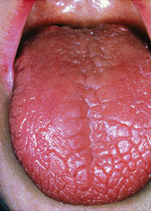 Figure 1.Dry tongue in patients with Sjögren's syndrome stems from the inability to produce saliva. The condition is also associated with dry eyes.