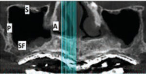 FIGURE 1. In this panoramic view of the right maxillary sinus, four of the six walls of the sinus are visible: anterior (A), posterior (P), sinus floor (SF) and superior (S); not seen are the lateral and medial walls.