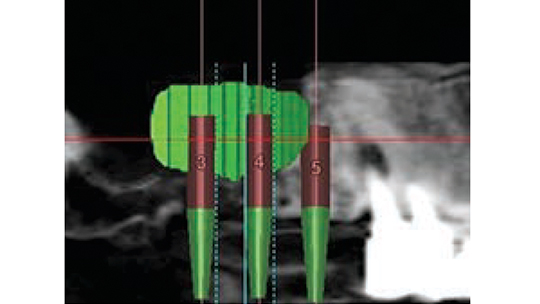 FIGURE 5. This schematic diagram defines the size of the sinus bone graft (green section).