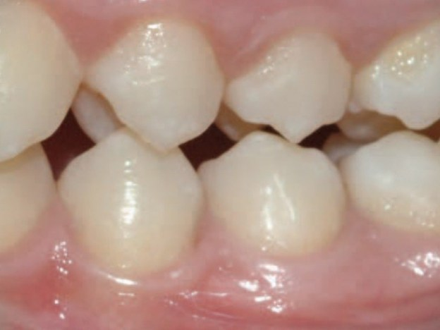 Impact of Occlusal Discrepancies on Periodontal Disease course image