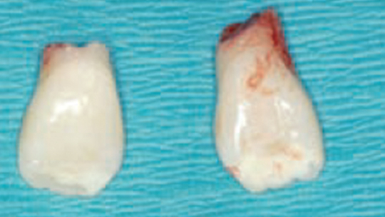 FIGURE 10. Teeth #7 and #10 following extraction.