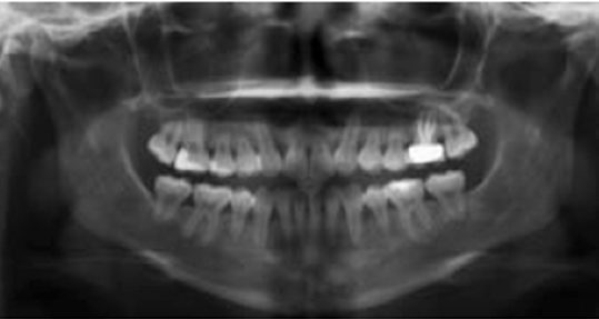 FIGURE 12. Posttreatment panoramic radiograph.