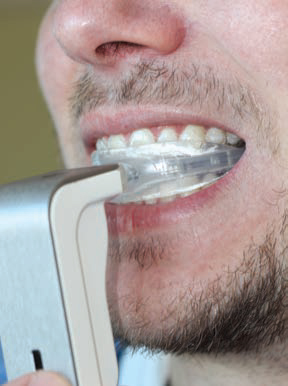 FIGURE 2. An example of a patient using a vibrational device that reportedly reduces treatment time during orthodontic therapy.