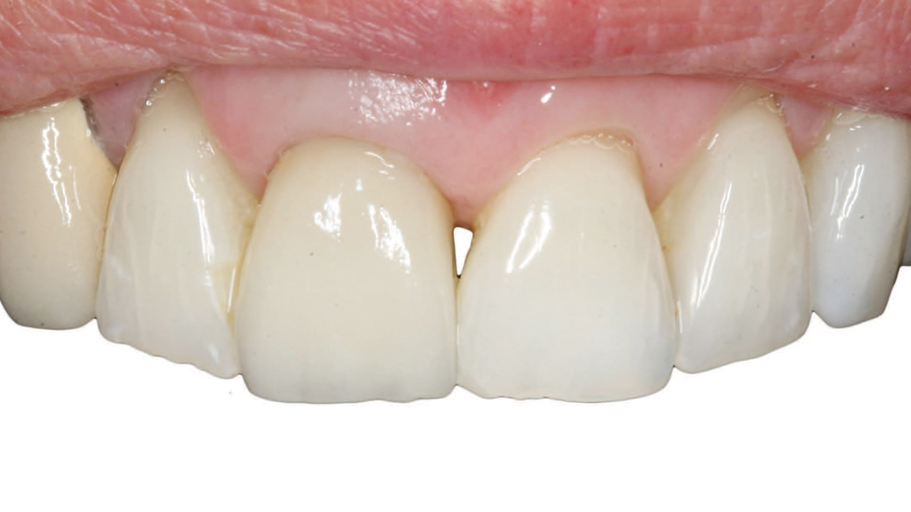 Selection Guidelines for All-Ceramic Restorations - Decisions in