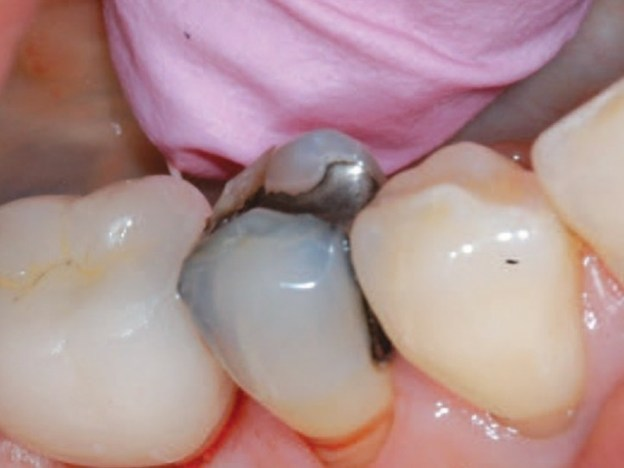 Managing Implant Complications course image