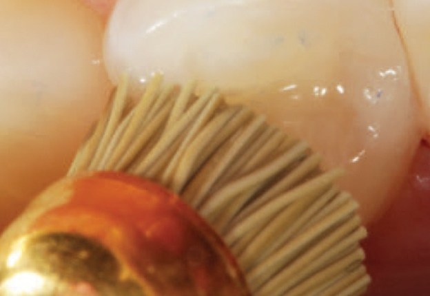 Clinical Update on Composite Restoratives course image