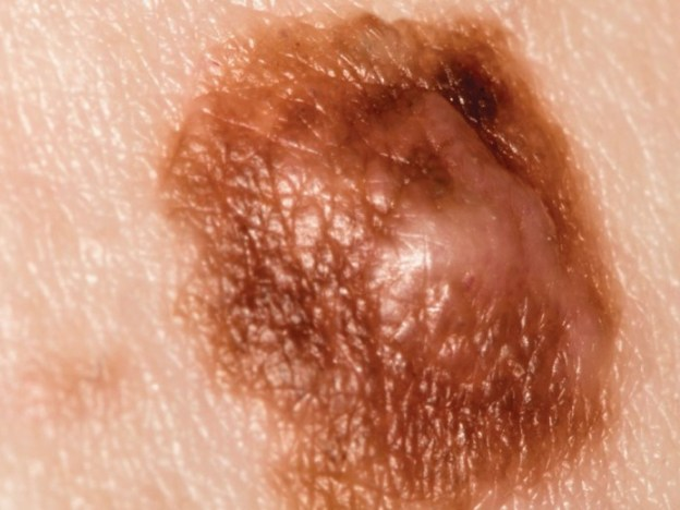 Screening for Skin Cancer course image