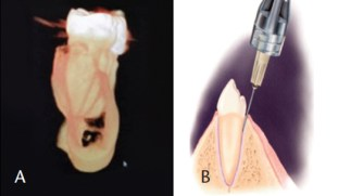 Inferior Alveolar Injection Approach