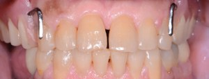 Digital Dentistry Maxillary Implant