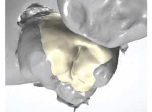 Digital Dentistry Digital Design
