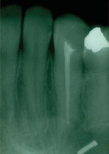Third Molar Patient