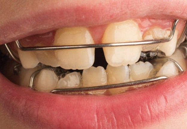 10 Orthodontic Challenges in the Primary and Mixed Dentition course image