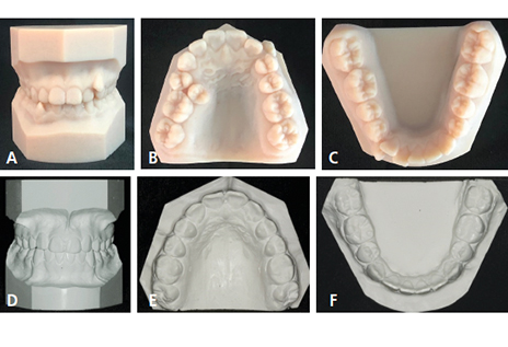 Intraoral Scanning in Orthodontic Practice