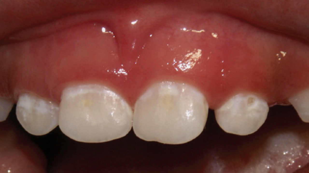 Pathways for the Management of Early Childhood Caries