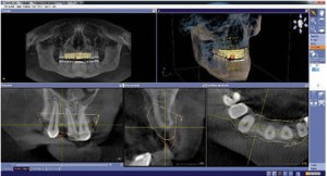 CBCT scan in digital workflow