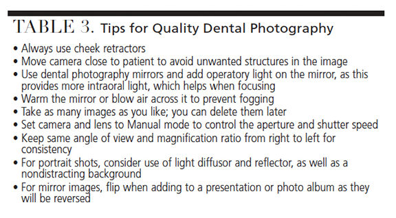 Tips for dental photography