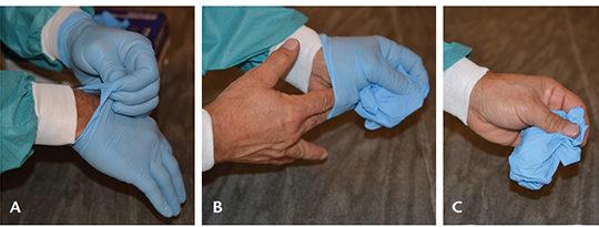 Clinician doffing gloves