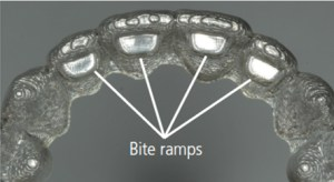 Bite ramps in orthodontic treatment
