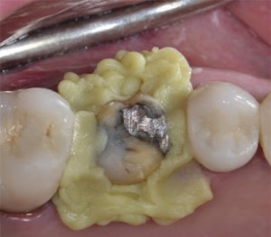 Retraction paste for gingival retraction