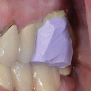 Registration material for gingival retraction