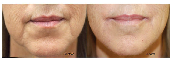 Lower facial injectables