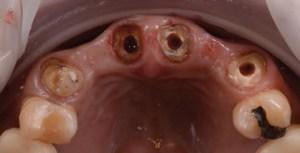 Implant on femela