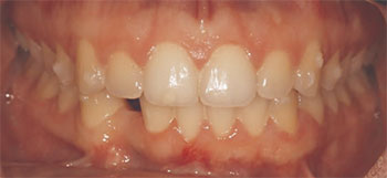 Preoperative buccal view.