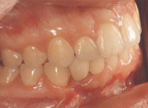 Following implant restoration.