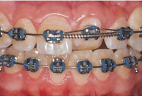 Maxillary anterior teeth.
