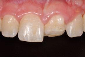 Contralateral maxillary central incisor