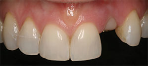 Anterior left lateral incisor after immediate implant placement.