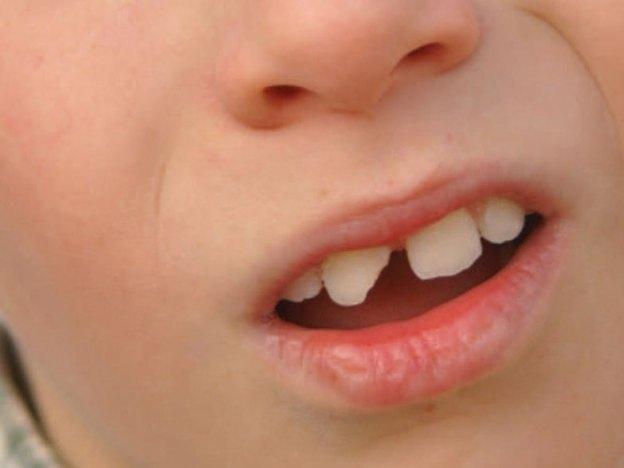 Managing Dental Trauma: A Review course image