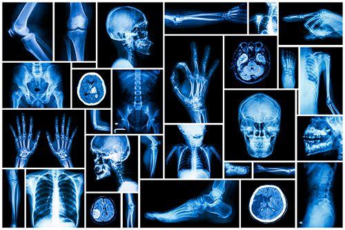 Cursos de radiologia gratis