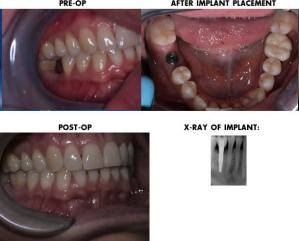 dental implant process timeline