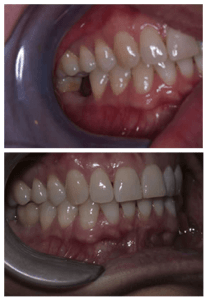 dental implants before and after pics 1