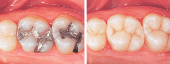Banbury white composite fillings