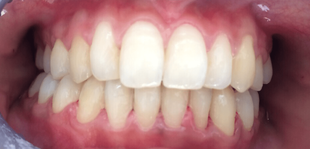 Case after cosmetic dentistry
