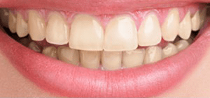 Case before teeth whitening