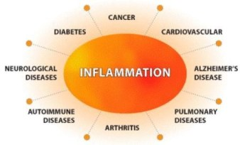 """Inflammation & Cancer Fighter: Tomato-Turmeric Pepper Soup, inflammation-fighting, diet, soup base, colorful, delicious meal, curcumin, turmeric, tomatoes, studies, health benefits,Lipitor, steroids, Metformin,Prozac, Imipramine,Oxaliplatin (a chemotherapy drug),Tylenol, Ibuprofen, Aspirin, Naproxen, Celecoxib, Tamoxifen, Science journal,geno-protective properties, DNA, genetic damage, cystic fibrosis, lung disorder, repairing DNA damage, cancer fighter, antioxidant activity, the bomb, digestive health,Crohn's disease, ulcerative colitis, inflammatory bowel disease,highly-pigmented, spice, wellness plan, acute inflammation, lycopene,prostate, lung, stomach cancer,cancers of the pancreas, colon and rectum, esophagus, oral cavity, breast, cervical cancer,cardiovascular disease, reduce LDL (""""bad"""") cholesterol, lower blood pressure, cooked tomatoes, fat, ingredients, directions, recipe, bone broth, herb, ground black pepper, caramelized onions, saute, stick blender, increase absorption, golden paste,"""