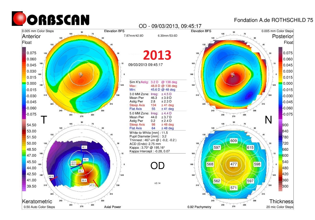 ORBSCAN RIGHT EYE CASE3