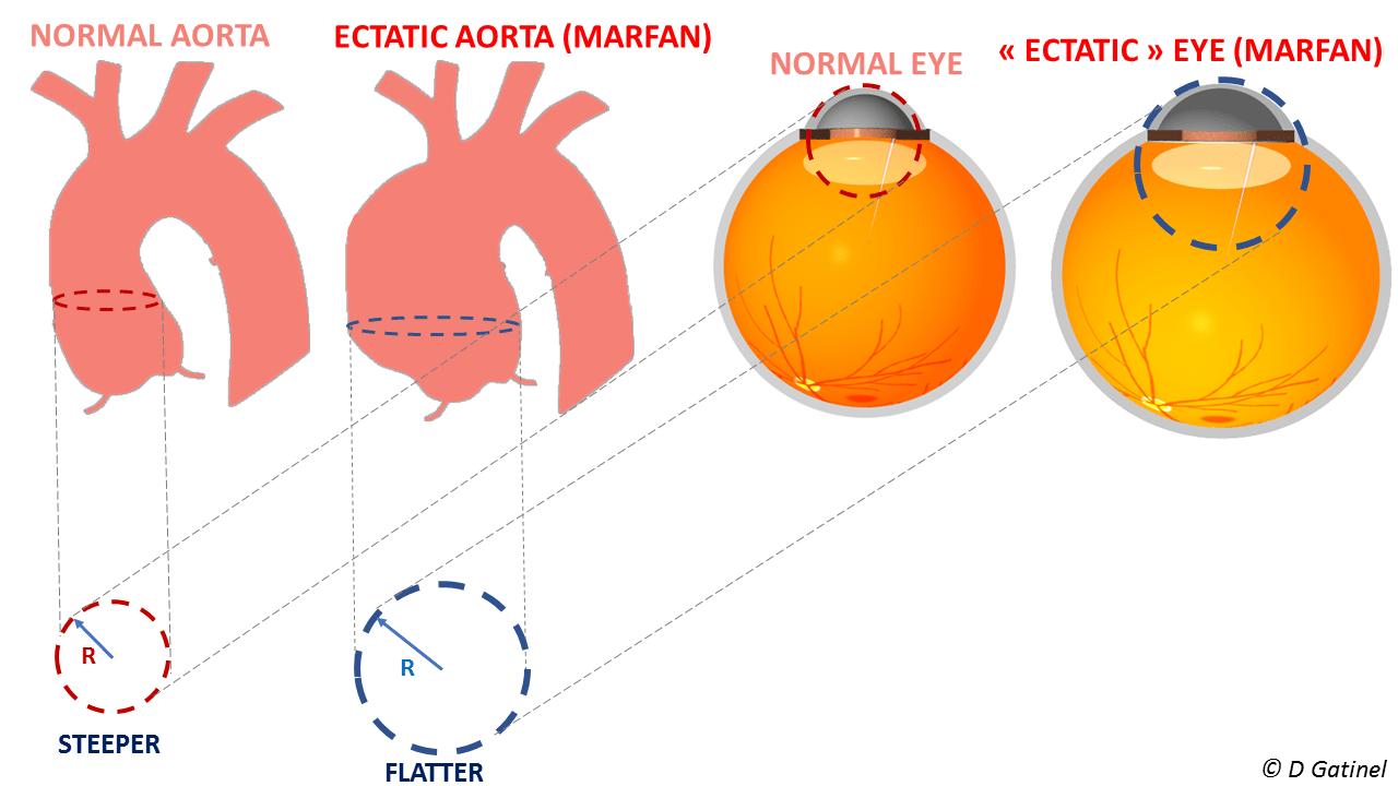 dilatation aorta marfan defeatkeratoconus.com paradox flat cornea